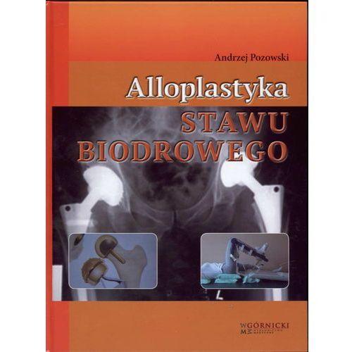 Książki medyczne, Alloplastyka stawu biodrowego (opr. twarda)