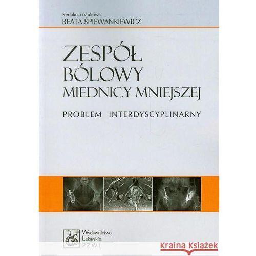 Książki medyczne, Zespół bólowy miednicy mniejszej (opr. miękka)